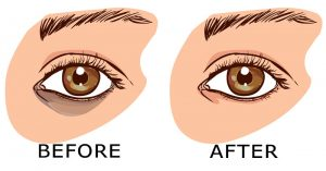 Read more about the article 7 Remedies That Remove Dark Circles Fast!