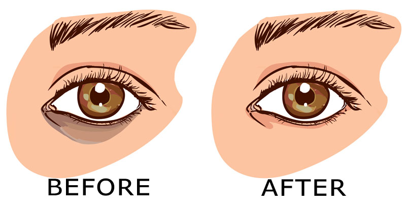 You are currently viewing 7 Remedies That Remove Dark Circles Fast!
