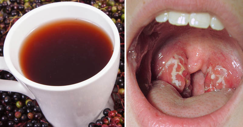 You are currently viewing Strep Throat: 10 Natural Remedies