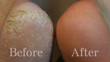 Clean Your Feet With Baking Soda