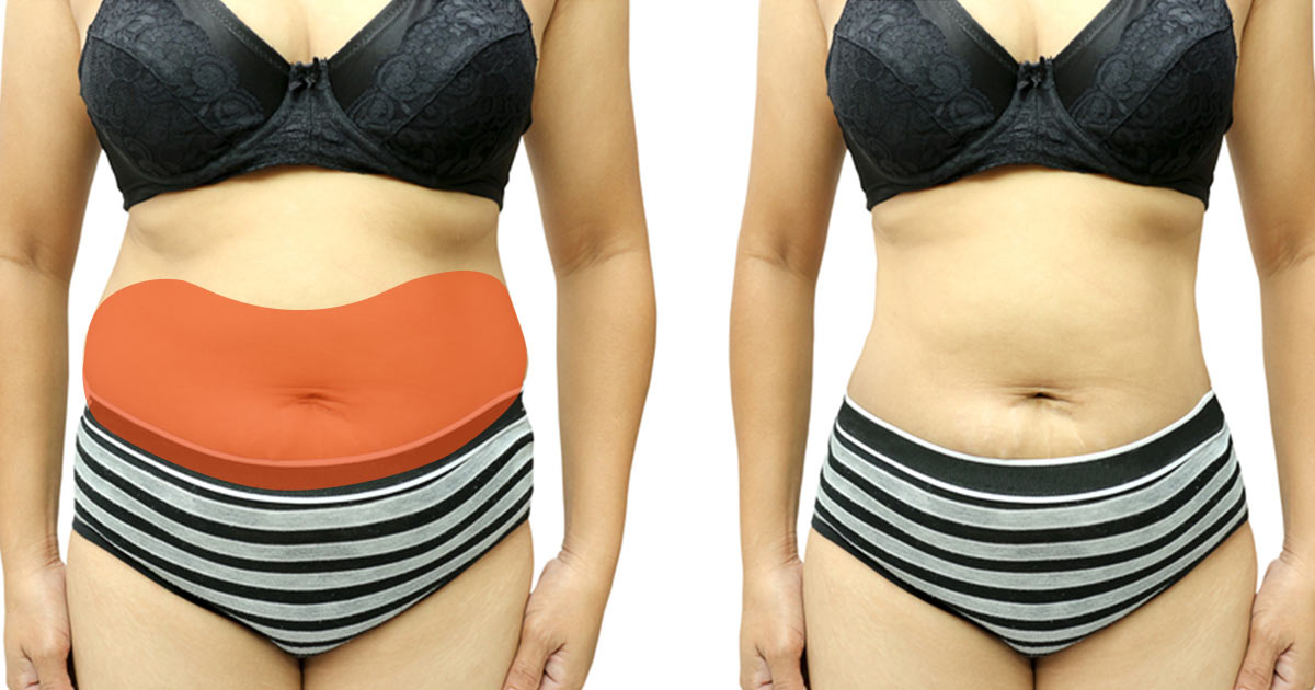 Once You Reset These 6 Hormones, Getting Rid of Excess Fat Becomes Way Easier