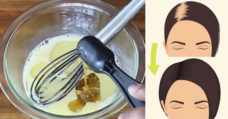Mix These 3 Ingredients To Regrow Thick, Strong Hair In No Time!