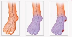 Read more about the article Poor Blood Circulation, Cold Hands and Legs? Here is What You Can Do to Solve This Problem