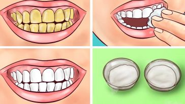 Whiten your yellow teeth