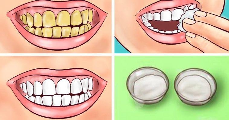 Whiten your yellow teeth