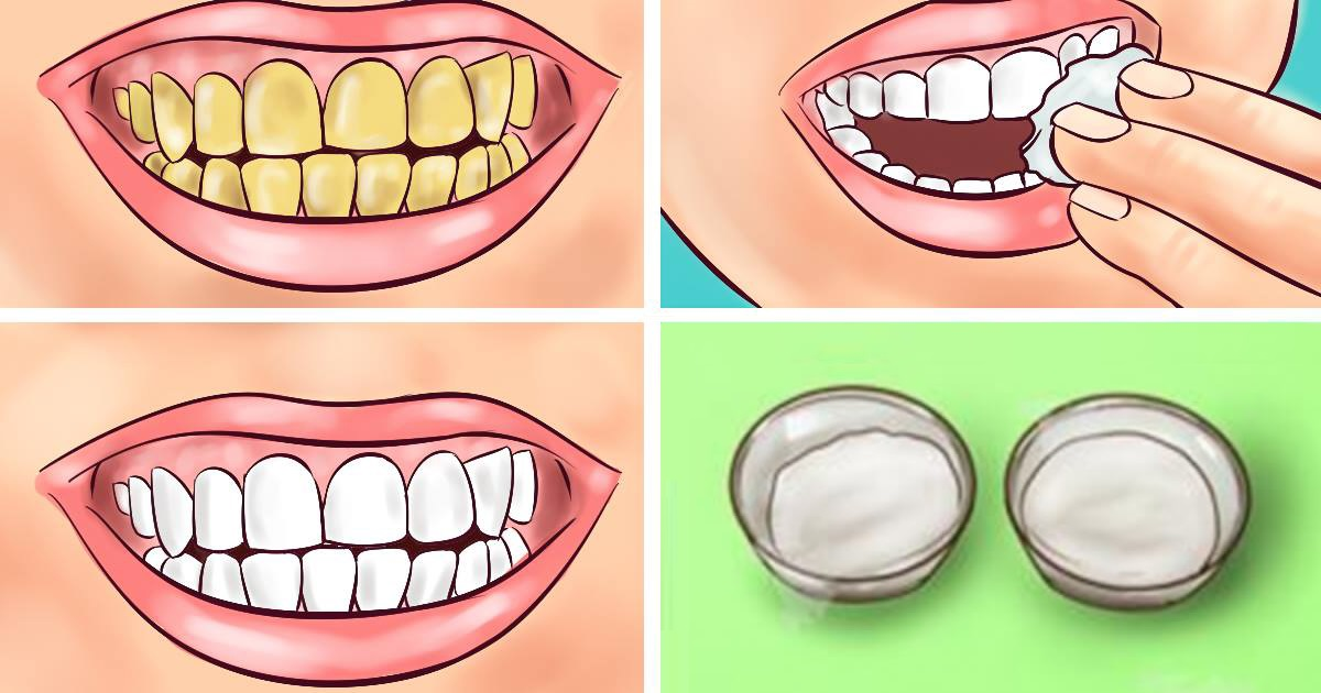 You are currently viewing Guaranteed! Whiten Your Yellow Teeth In Less Than 2 Minutes!