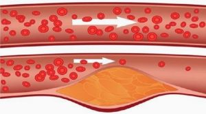 Read more about the article Take 4 Tablespoons Of This Every Morning And Say Goodbye To Clogged Arteries, High Blood Pressure, And Bad Cholesterol!