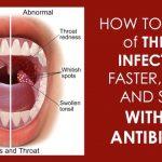 Strep Throat Infection