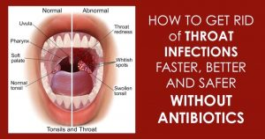 12 Effective Natural Home Remedies To Treat A Strep Throat Infection