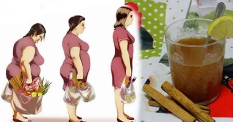You are currently viewing This Honey, Lemon, And Cinnamon Drink Will Help You Lose Pounds in One Week