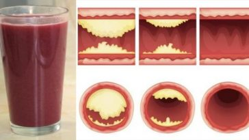 Delicious Juice Will Unclog Arteries