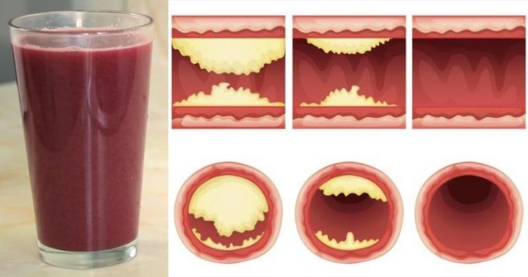 This Delicious Juice Will Unclog Arteries and Prevent Heart Disease!
