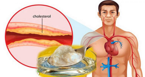 Read more about the article The Best Medicine Against Cholesterol And High Blood Pressure