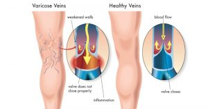 Read more about the article 10 Natural Ingredients That Help Improve Blood Circulation and Prevent Varicose Veins
