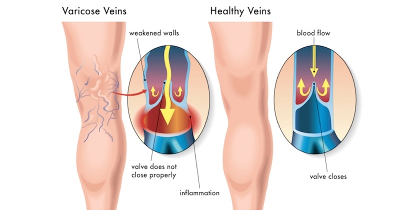 You are currently viewing 10 Natural Ingredients That Help Improve Blood Circulation and Prevent Varicose Veins