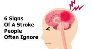 Read more about the article 6 Signs Of A Stroke People Often Ignore