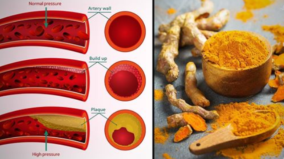 You are currently viewing Turmeric For High Blood Pressure: How The Golden Spice Can Help
