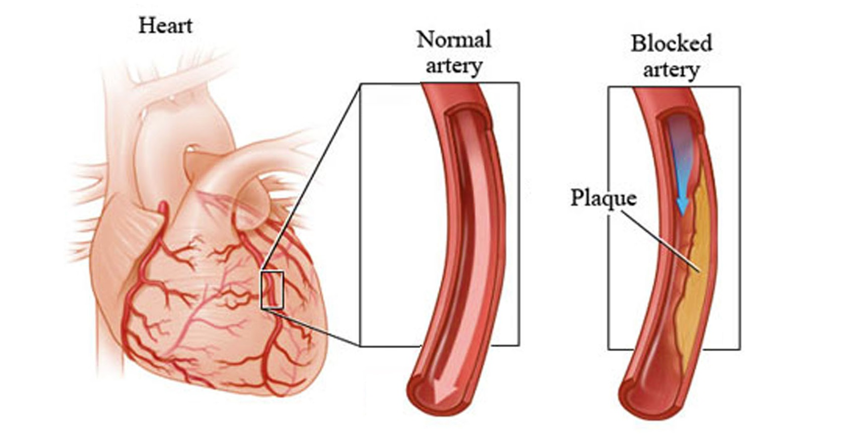 7 Early Warning Signs Of Heart Attack You Shouldn't Ignore