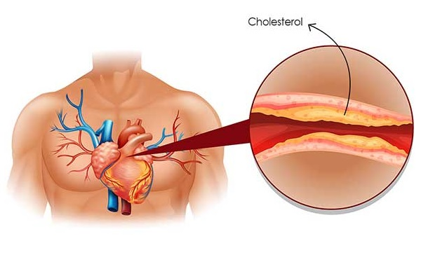You are currently viewing Eat These Foods To Reduce Cholesterol Levels In Your Blood