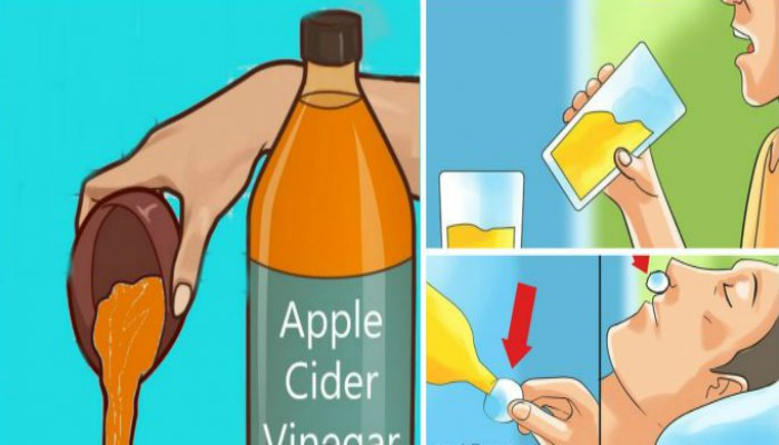 You are currently viewing Drink Apple Cider Vinegar Before Bed Because You Will Treat These Health Conditions