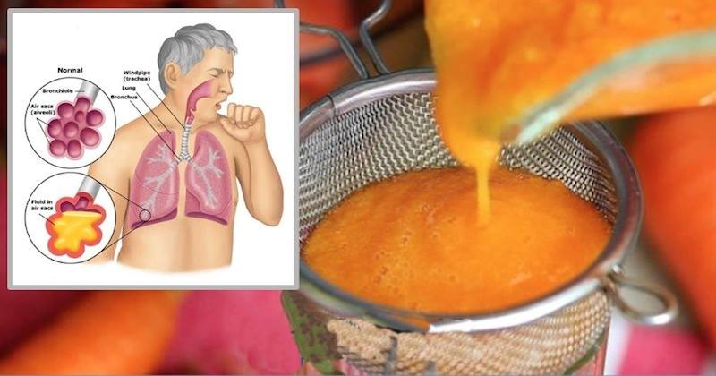 2-Ingredient Homemade Syrup For Stopping Cough And Clearing Phlegm From Lungs