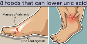 Read more about the article 8 Foods That Can Lower Uric Acid