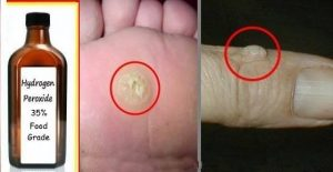 Read more about the article How to Easily Remove Warts And Skin Tags With Hydrogen Peroxide
