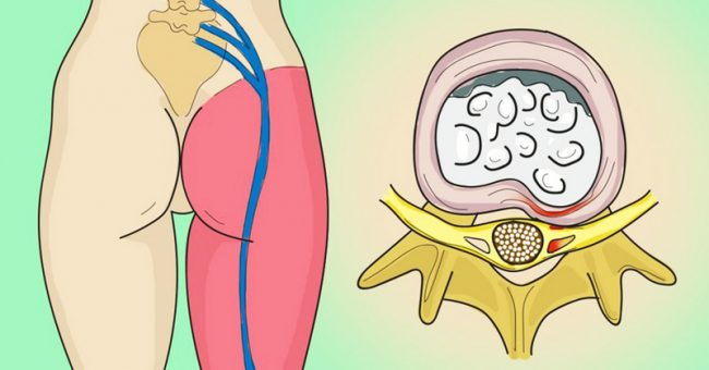 How to Release the Pinched Nerve in the Lumbar Area (sciatica)- 5 Simple Ways to Get Rid of the Pain