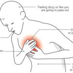 Know When It's A Cardiac Arrest + 8 Symptoms And Tips To Recovery