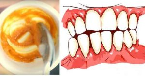 Read more about the article This Homemade Toothpaste Reverses Gum Disease and Whitens Teeth!