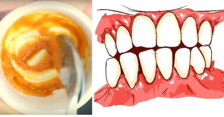 You are currently viewing This Homemade Toothpaste Reverses Gum Disease and Whitens Teeth!