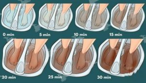 Read more about the article Once A Week Soak The Feet In Vinegar, And You Are Going To Heal Yourself From Many Diseases