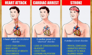 Read more about the article You Must Know The Differences Between A Heart Attack, Cardiac Arrest And Stroke