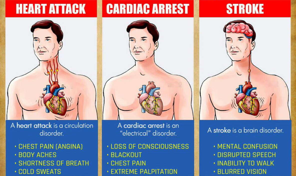 You are currently viewing You Must Know The Differences Between A Heart Attack, Cardiac Arrest And Stroke
