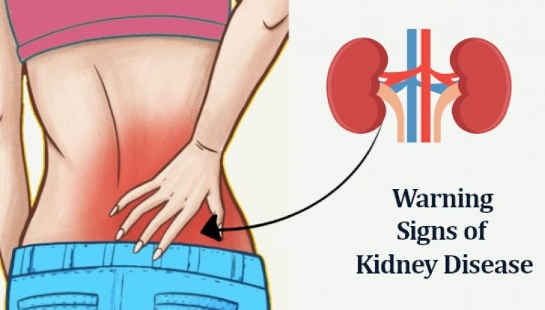 25 Hidden Signs You Have Kidney Problems. This is Lifesaving