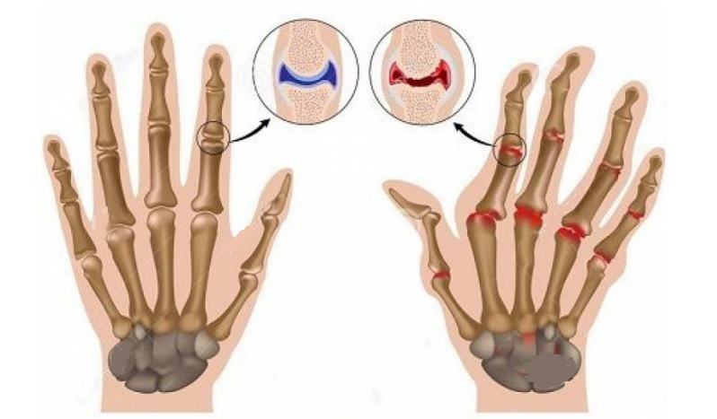 Find Out About This 3,000-Year-Old Technique For Treating Rheumatoid Arthritis And Inflammation