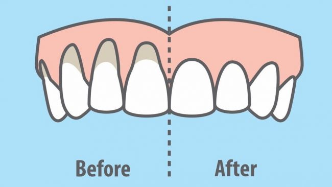 10 Easy Ways to Heal Receding Gums Naturally