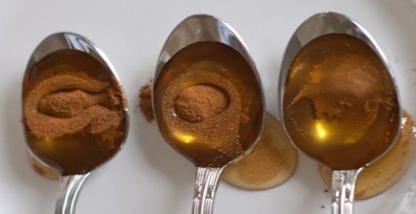 You are currently viewing Cinnamon and Honey: Most Powerful Remedy That Not Even Doctors Can Explain