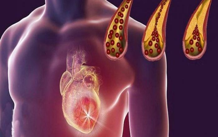 You are currently viewing 10 Foods That You Should Eat Daily For Clean Arteries